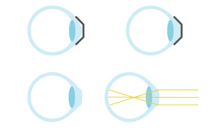 A diagram showing how corneal reshaping works before, during, and after wearing the lens
