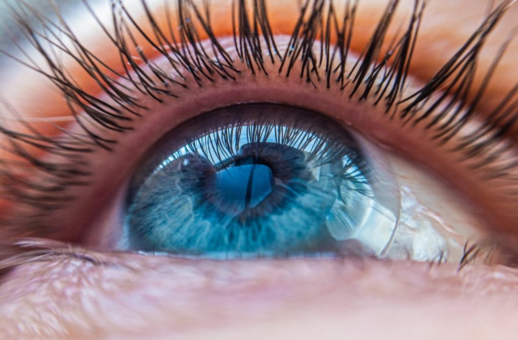 Close up of woman's eye wearing scleral contact lenses.
